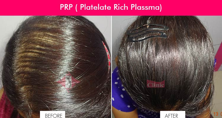 PRP Therapy Hair Loss Treatment| Sakhiya Skin Clinic