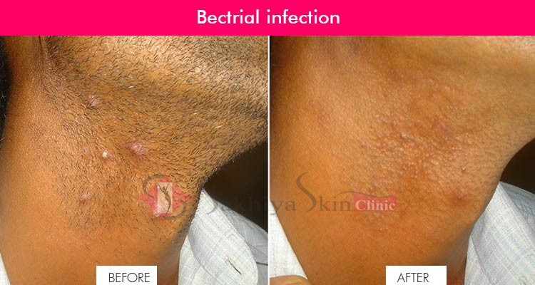 Bacterial Infection