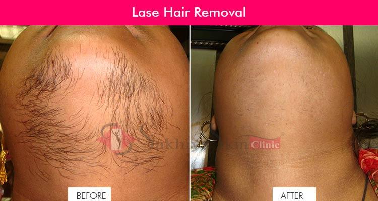 Laser Hair Removal Sakhiya Skin Clinic
