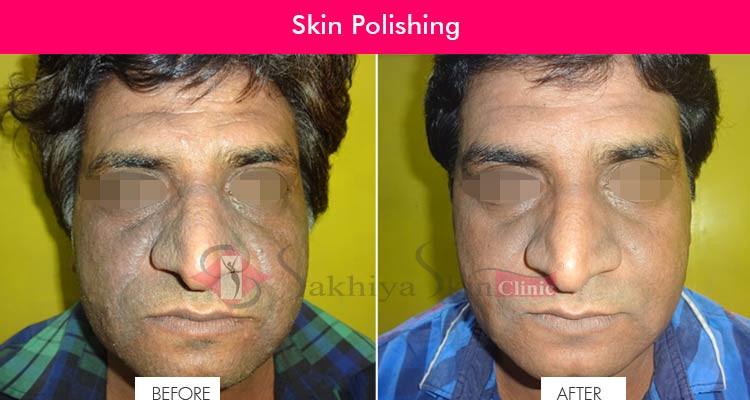 Skin Polishing