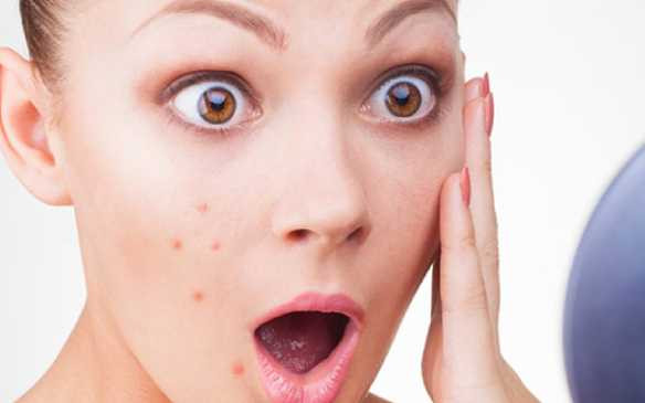 12 Tips to Remove Pimples