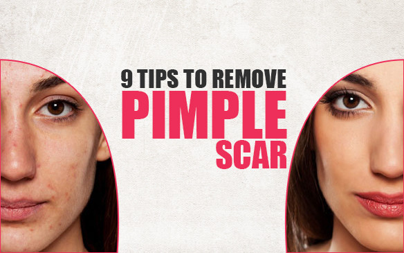 9 Tips to Remove Pimple Scar