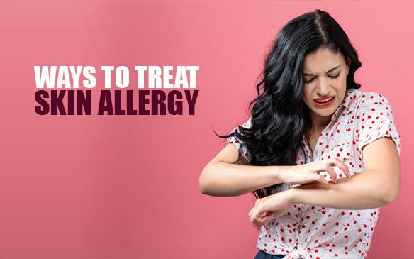 Ways to treat Skin Allergy