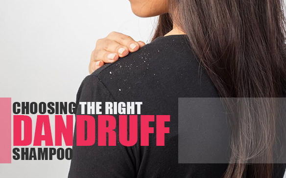 How to choose Right Dandruff Shampoo