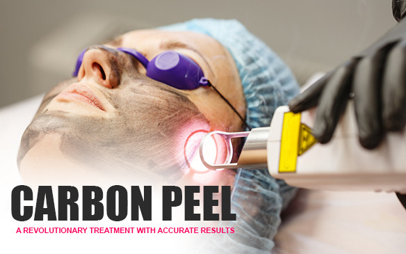 Carbon Peel: A revolutionary treatment with accurate results