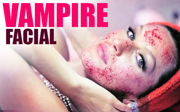 Must-Go-Though Facts about Vampire Facial