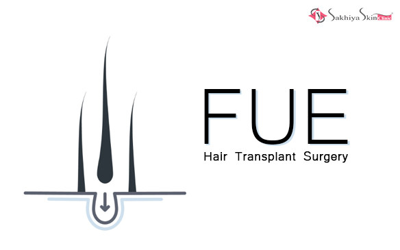 Say No to Baldness with FUE Hair Transplant Surgery