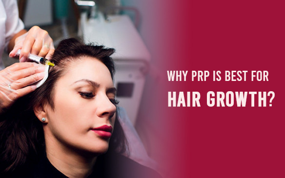 Why PRP is best for hair Growth?