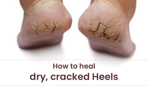 How to Heal Dry, Cracked Heels, According to the Dermatologist