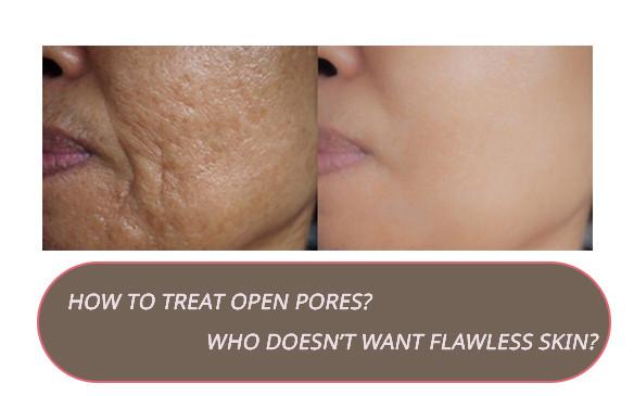 How to treat open pores?