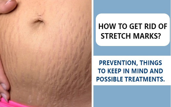 HOW TO GET RID OF STRETCH MARKS?