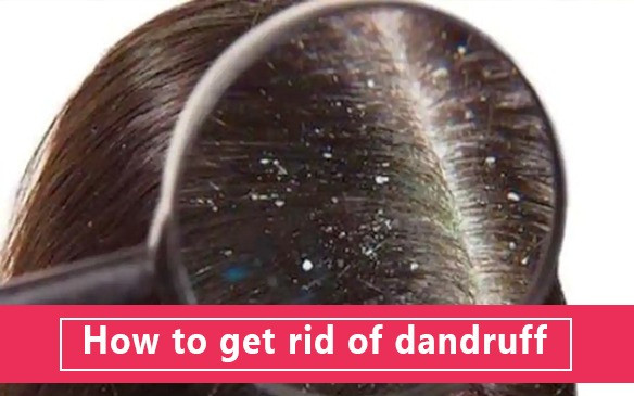 Dandruff causes and its treatment