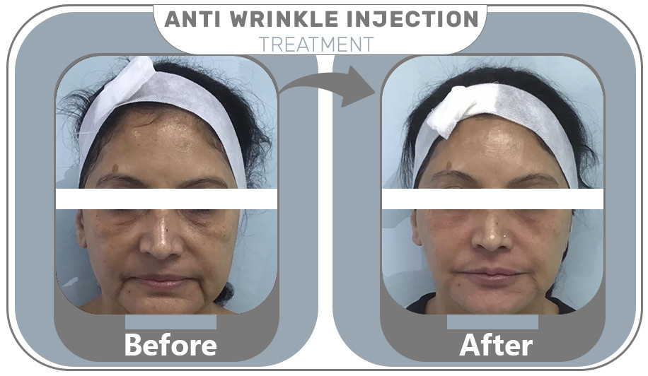 Anti Wrinkle Injection Treatment Results