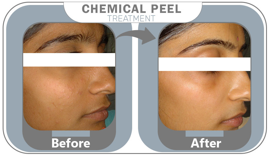 chemical peel treatment results