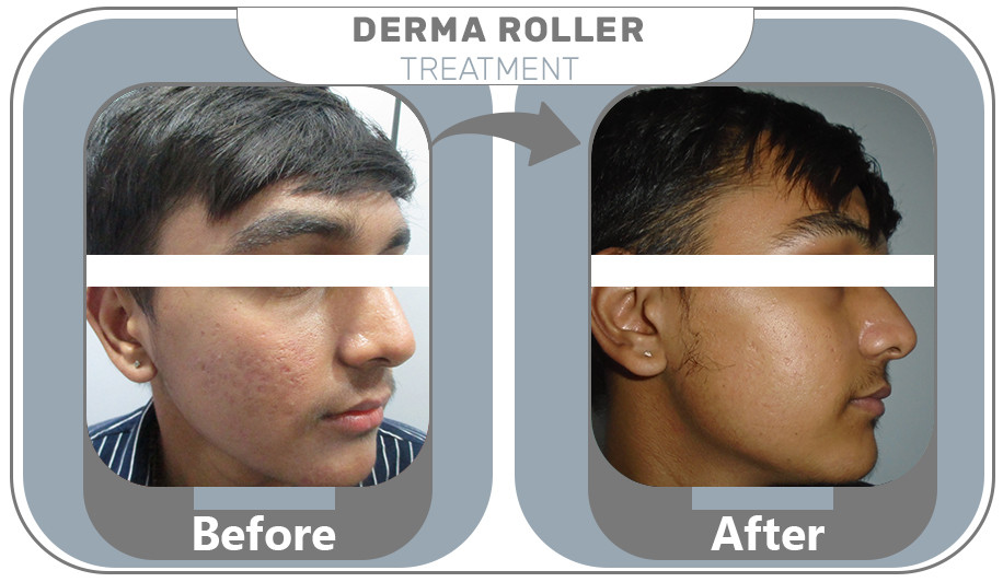 Derma Roller Treatment results