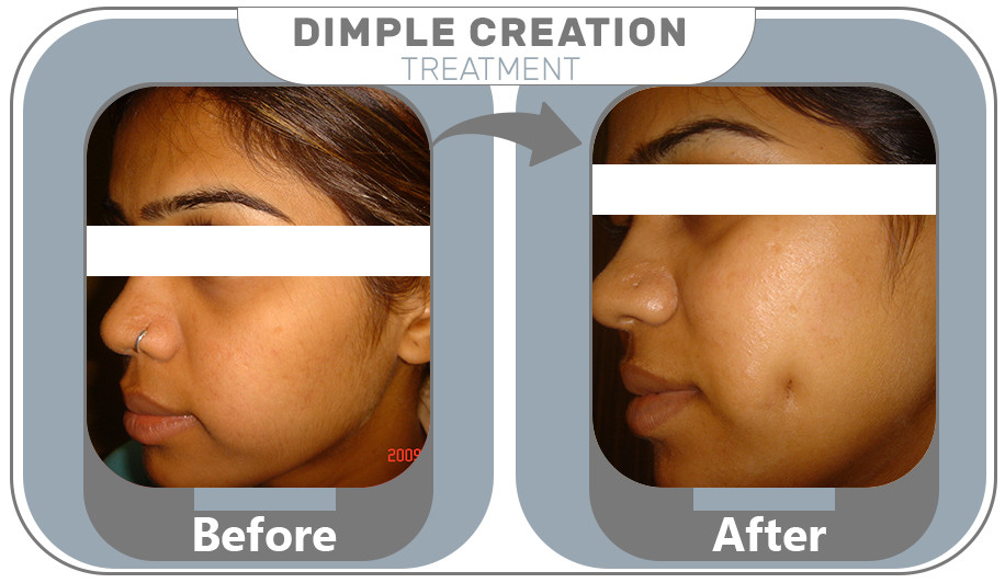 Dimple Creation Treatment results