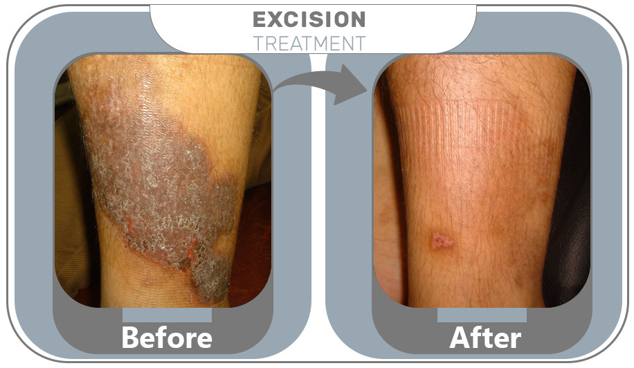 Excision Treatment results