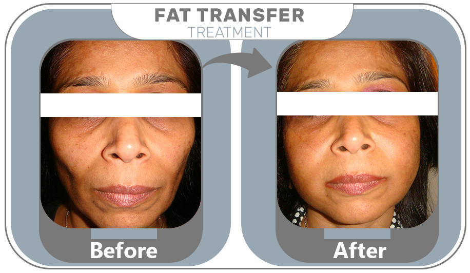 Fat Transfer Treatment results