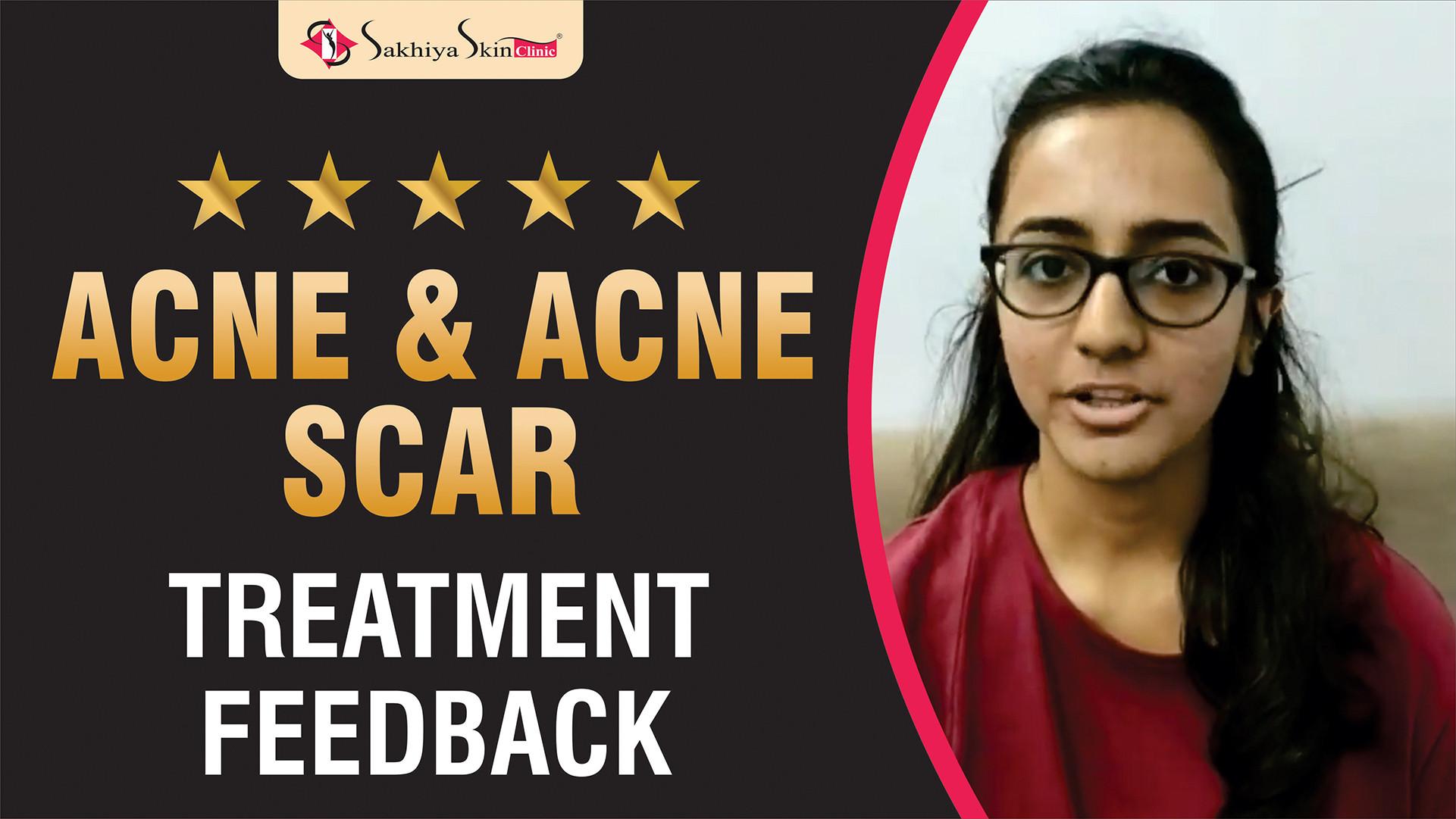 Acne & Acne Scar Treatment